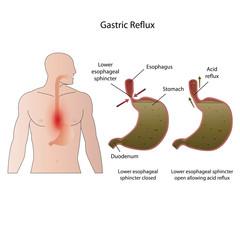 Gastroesophageal reflux disease medical vector illustration