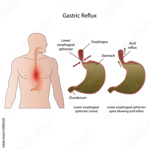 Gastroesophageal reflux disease medical vector illustration