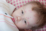 Portrait of little boy with chickenpox