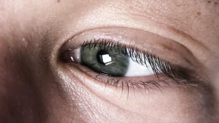 Eye HD