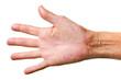 Eczema on a hand
