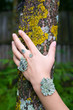 lichen on the hand
