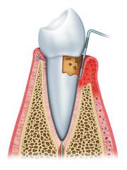 periodontitis half