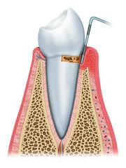 onset periodontitis