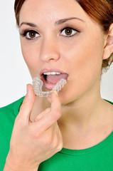 ortodonzia apparecchio bite