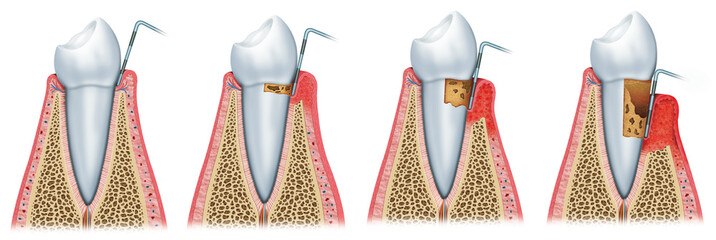 Sequence of Periodontitis