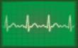Herzkurve 24a