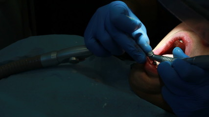Close-up medical dentist procedure of teeth polishing