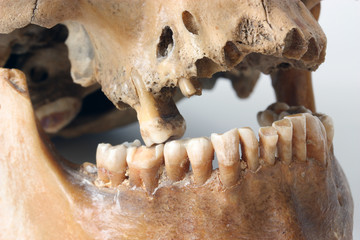 Teeth of the person.