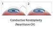 Conductive Keratoplasty eye surgery, eps10