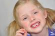 Meine erste Zahnlücke