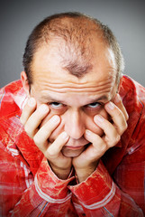 Adult man losing hair