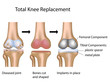 Total knee replacement surgery, eps10