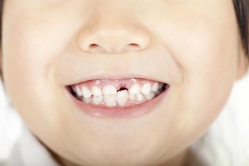 歯がない女の子