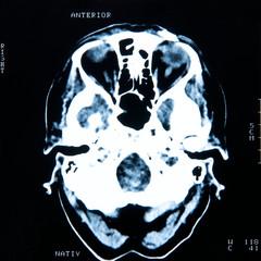 CT Bild Schädel