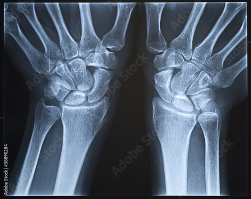 Wrist X-ray. Female.