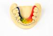 bunte Zahnspange mit Modell (Draufsicht)