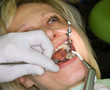 Mature lady in dental examination