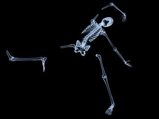 Shattered Skeleton