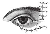 Fig. 178. Blepharoplasty by the method of Blasius, vintage engra poster