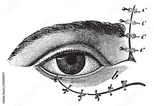 Fig. 178. Blepharoplasty by the method of Blasius, vintage engra