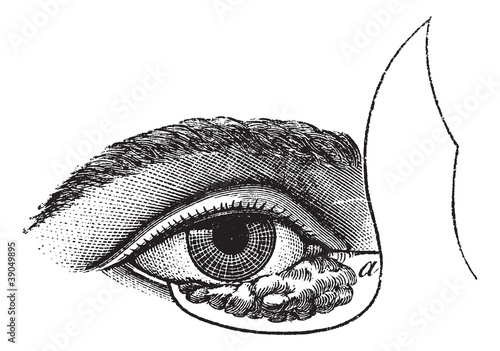 Fig. 177. Blepharoplasty by the method of Blasius, vintage engra