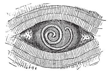 Pork Roundworm or Trichinella spiralis, vintage engraving