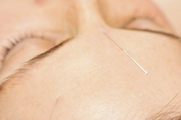 accupuncture treatment