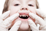 Examining caries teeth decay poster