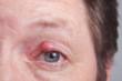 Leinwandbild Motiv Auge mit Gerstenkorn