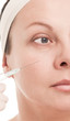 Woman with marks drawn on face during botox procedure