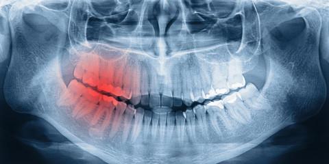 X-ray scan of teeth