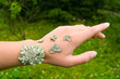 lichen on the hand of young woman symbolizing a skin disease