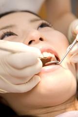 歯の治療を受ける女性患者