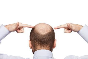 Bald man head