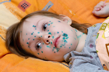 The girl suffers chickenpox