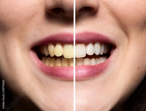 Fototapeten,zahn,zahnpflege,weißem hintergrund,verblichen