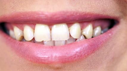 Happy woman smile. Dental health.