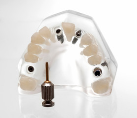 dental implants3