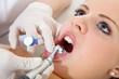 Zahn Politur
