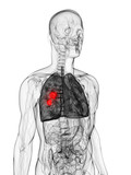 3d rendered scientific illustration of a lung tumor poster