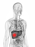 3d rendered scientific illustration of a liver tumor poster