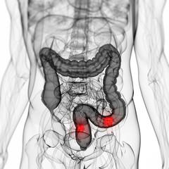3d rendered scientific illustration of a colon tumor