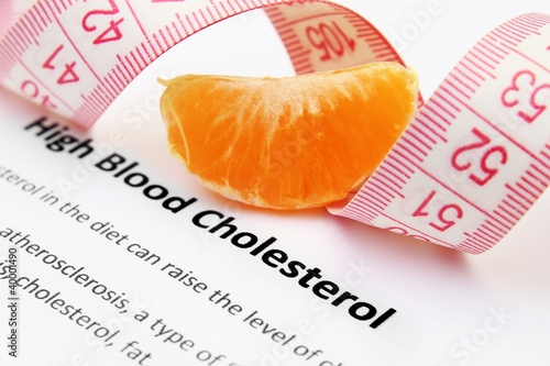 High blood cholesterol