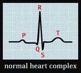 Normal heart set on electrocardiogram. Professional information. poster
