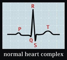 Normal heart set on electrocardiogram. Professional information.