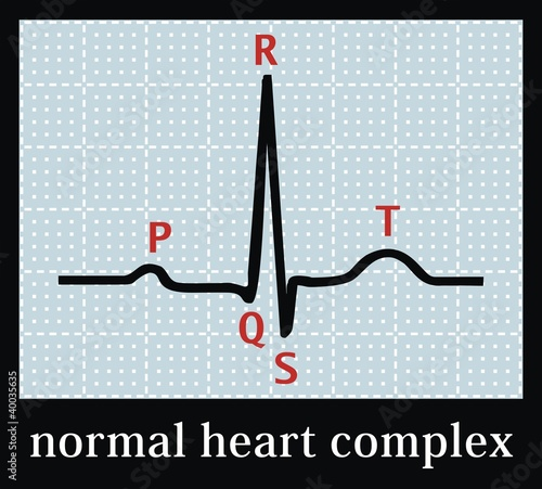 Normal heart set on electrocardiogram. Professional information.