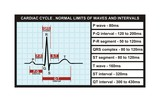 Cardiac cycle and normal levels of intervals and waves poster