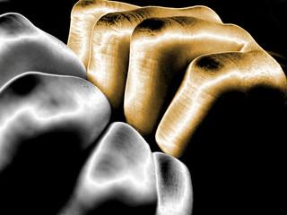 dedos metálicos 05