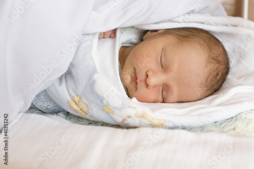 Baby sleeping on bed with red spots on face